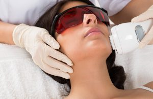 4 Reasons Why Laser Hair Removal is a Preferred Method of Hair Removal
